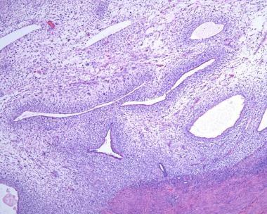 Periglandular cuffing (ie, increased stromal cellu
