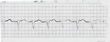 100% ventricular paced rhythm.