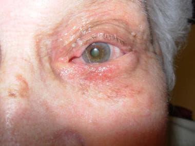 Involutional entropion of left lower eyelid. Patie