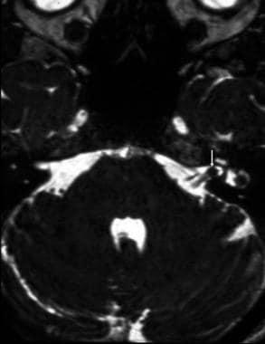 Intracanalicular vestibular schwannoma. Axial cons