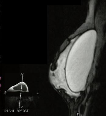 Inversion recovery magnetic resonance image shows