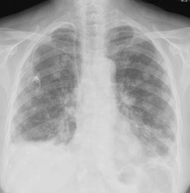 Chest radiograph in a 62-year-old woman with malig