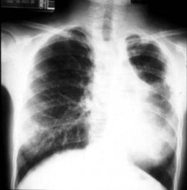 The same patient shown in the previous image, now