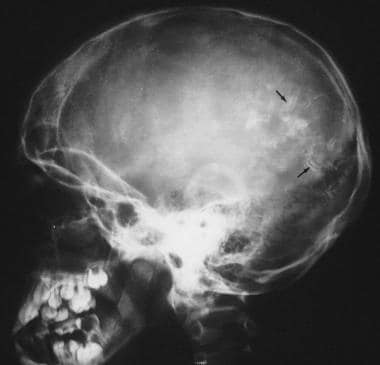 Plain lateral skull radiograph demonstrates the ty