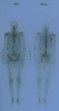 Anterior and posterior bone scans of a patient wit