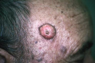 Keratoacanthoma lesion (squamous cell carcinoma-ke