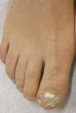 Proximal subungual onychomycosis. Proximal leukony