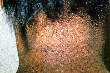 Close-up photograph shows ash-colored macular lesi