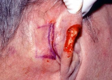 Planned incision for a postauricular flap.