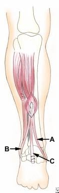 Posterior tibial tendon (C) is pulled through slit