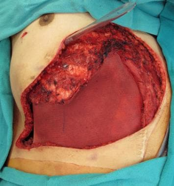 Coverage of the open abdominal defect with a Parie