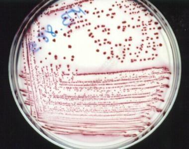 Escherichia coli culture on MacConkey agar.