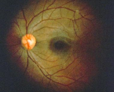Normal fundus of left eye.