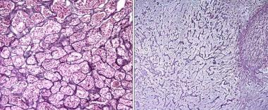Normal pituitary versus pituitary adenoma. Note th