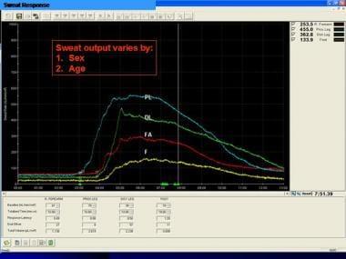 Quantitative sudomotor axon reflex testing (QSART)