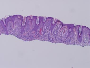 Intradermal melanocytic nevus. The nevomelanocytes
