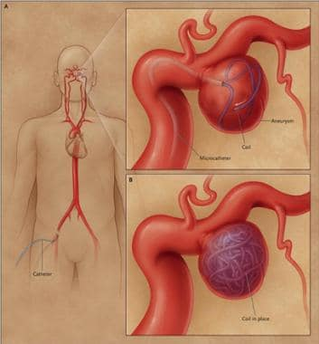 Endovascular coiling of cerebral aneurysm. Transfe