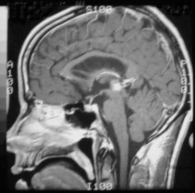Pineal germinoma in a 30-year-old man. Sagittal T1