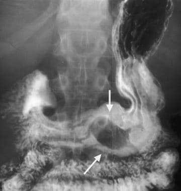 Gastric gastrointestinal stromal tumor (GIST) en f