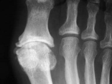 Radiograph of the foot reveals narrowing, subchond