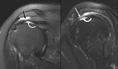 Articular- and bursal-surface partial-thickness te