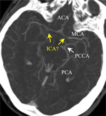 Intracranial CT angiogram in a patient with bilate