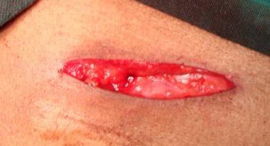 Open inguinal hernia repair. Subcutaneous tissue a
