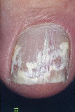 White superficial onychomycosis. Image courtesy of
