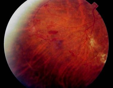 New vessel formation on the surface of the retina