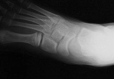 Radiograph from 16-year-old patient who had Köhler