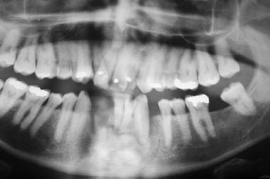 Mandibular sagittal symphysis fracture and dentoal