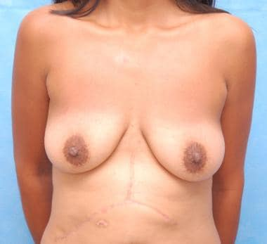 This patient had obvious and significant breast pt