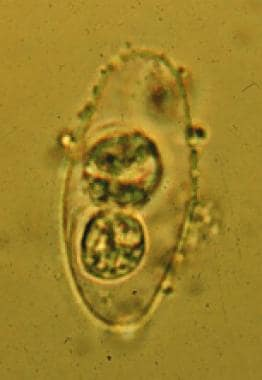 Oocyst of Cystoisospora belli with 2 sporoblasts.