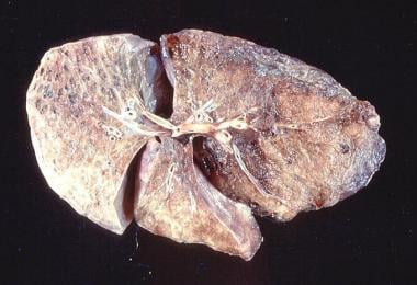 Gross pathology of bullous emphysema shows bullae