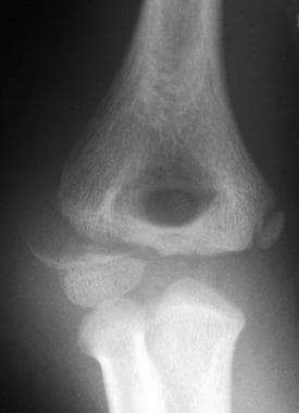 Lateral condyle fracture.