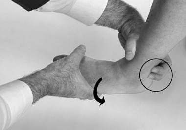 Peroneal stability test. The patient pushes the fo