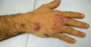 Cutaneous, ulcerating, painless nodule on the hand
