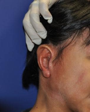 Patient shown underwent second stage of microtia s