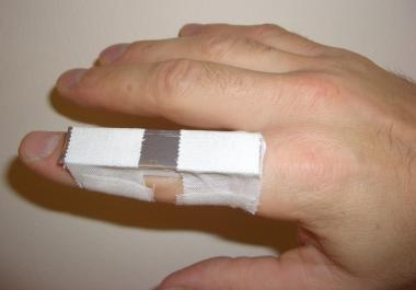 Boutonnière splint.