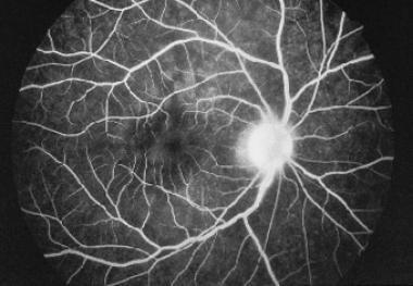 Fluorescein angiogram of multiple evanescent white