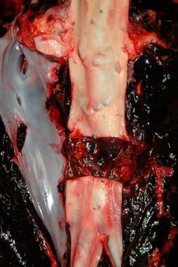 A stab wound of the inferior vena cava, as well as