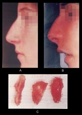Nasal tip elevation. (A) Preoperative profile. (B)