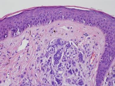 Intradermal melanocytic nevus. High-power photo of