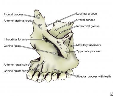 Left maxilla.