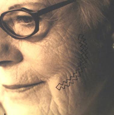 Design of W-plasty in cheek scar revision.