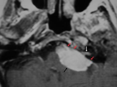Cerebellopontine angle meningioma. Axial contrast-