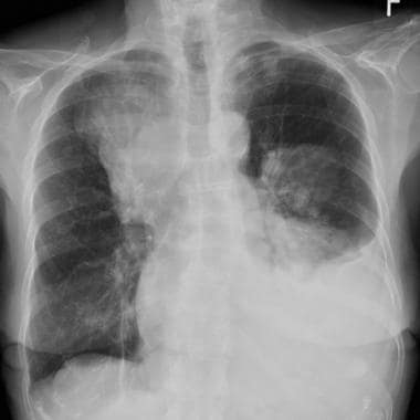 Chest radiograph in a 57-year-old woman with leiom