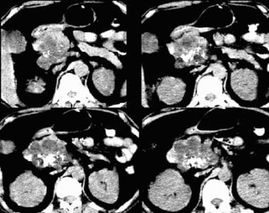 Serous cystadenoma on a nonenhanced CT scan. Note