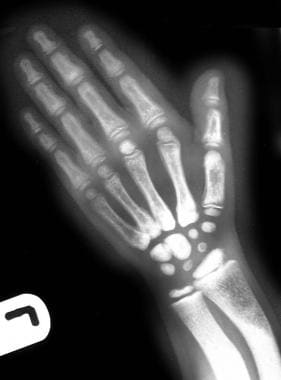 Radiograph of the left hand of a 6-year-old girl w