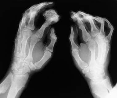 Radiographs of both hands of 36-year-old man show
